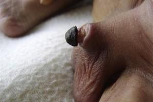 botched circumcision