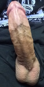 Circ scar on erection