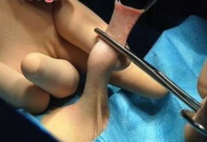 boy's penis being circumcised