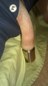 weight used to lengthen restoring foreskin